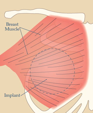 Breast implant placing