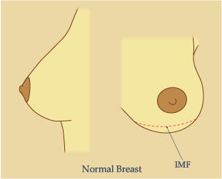 Picture Showing Normal Breast IMF