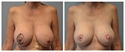 Mastopexy-01-Front.png