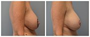 Mastopexy-01-Side.png