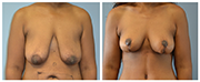 Mastopexy-02-Front.png