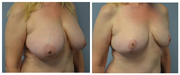 Breast Reduction Oblique