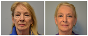Facelift and Blepharoplasty Front