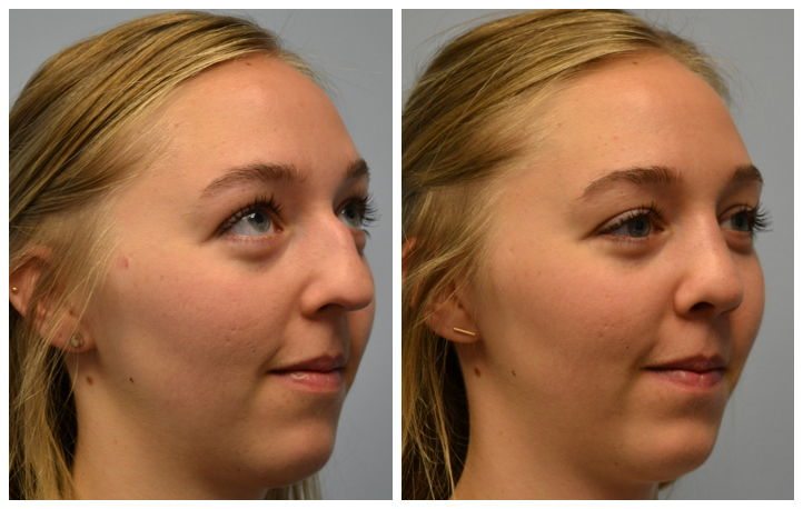 Atlanta Septoplasty Amp Rhinoplasty Before And After Photos