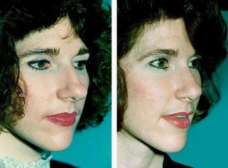 Atlanta Septoplasty & Rhinoplasty Before and After Photos