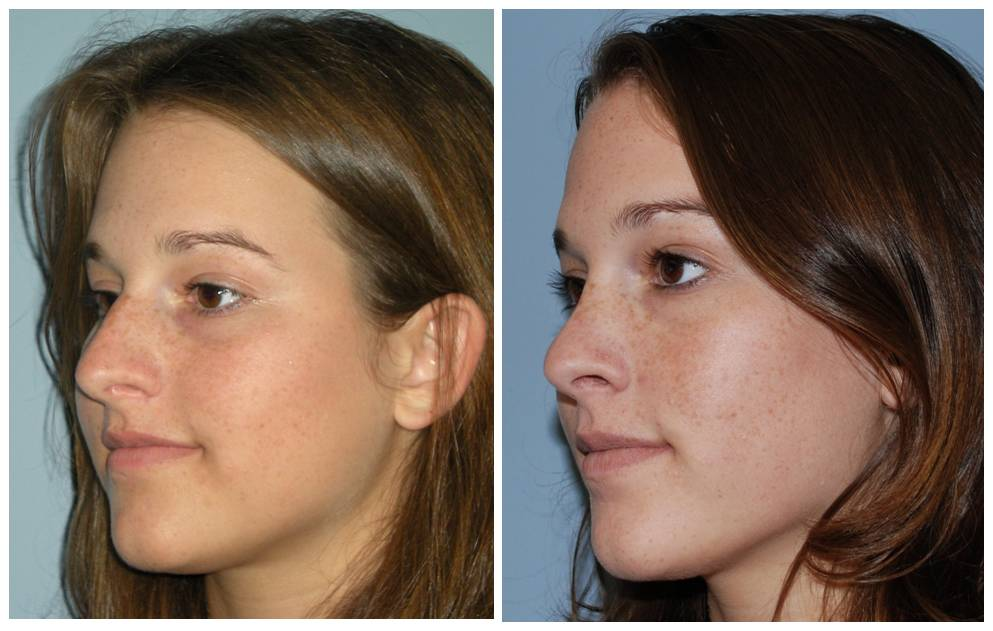 Rhinoplasty Before And After Atlanta Septopl...