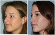 Atlanta Septoplasty & Rhinoplasty