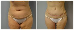 Atlanta Tummy Tuck