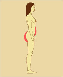 Illustration Showing Areas Where Fat Tends to Collect