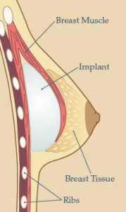 Atlanta Breast Implant Surgery