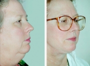 Neck Lift Surgery in Atlanta