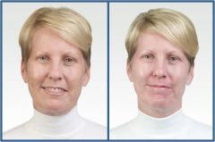 OBAGI Patient 1 Before & After photos