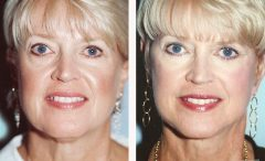 Facelift Patient 1 Before & After photos