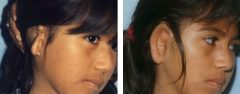 Microtia Patient 1 Before & After photos