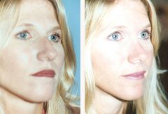 Rhinoplasty Patient 1 Before & After photos