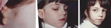Microtia - before and after pictures