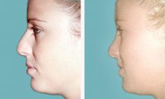 Rhinoplasty Patient 2 Before & After photos