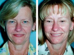 Facelift Patient 2 Before & After photos