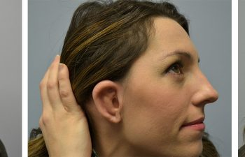 Woman Showing Ear After Microtia Surgery Atlanta