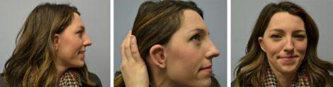 Woman Showing Ear After Microtia Surgery Atlanta