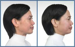 OBAGI Patient 3 Before & After photos