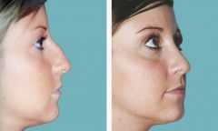 Rhinoplasty Patient 3 Before & After photos