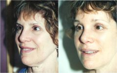 Facelift Patient 3 Before & After photos