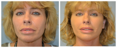 Facelift Patient 4 Before & After photos