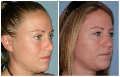 Rhinoplasty Patient 4 Before & After photos