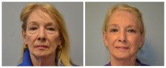 Facelift and Blepharoplasty Patient 5 Before & After photos