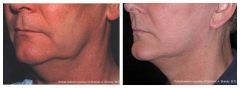 QuickLift Patient 1 Before & After photos