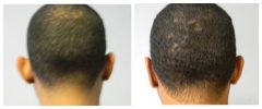Patient 7 Before & After photos