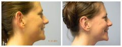 Patient 8 Before & After photos