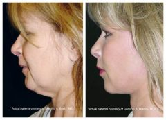 QuickLift Patient 3 Before & After photos