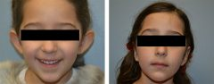 Patient 9 Before & After photos