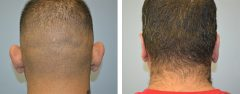 Patient 12 Before & After photos