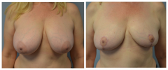 Breast Reduction Patient 8 Before & After photos