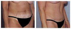 Tummy Patient 6 Before & After photos