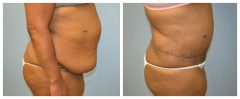 Tummy Patient 10 Before & After photos