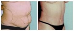 Tummy Patient 5 Before & After photos
