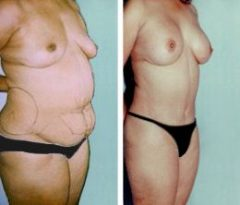 Patient 1 with Breast Augmentation and Liposuction Before & After photos