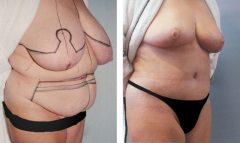 Tummy Patient 1 with Breast Reduction Before & After photos
