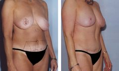 Patient 2 with Breast Lift and Small Breast Reduction Before & After photos