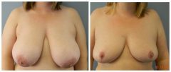 Breast Reduction Patient 6 Before & After photos