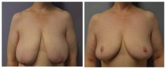 Breast Reduction Patient 7 Before & After photos