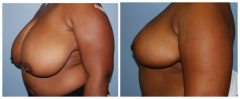 Breast Reduction Patient 4 Before & After photos