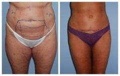 Tummy Patient 2 with Liposuction Before & After photos
