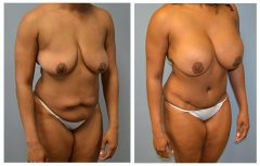 Patient 6 with Breast Augmentation and Type 3 Abdomnoplasty Before & After photos