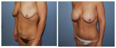 Patient 3 with Breast Augmentation Before & After photos