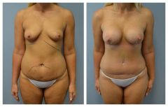 Patient 4 with Breast Augmentation Before & After photos